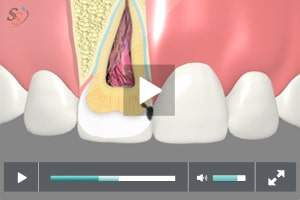 Tooth Colored Fillings - Class III