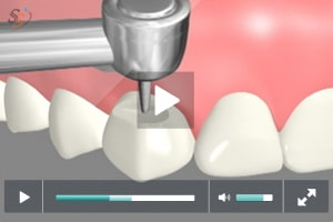 Tooth Colored Fillings - Class V
