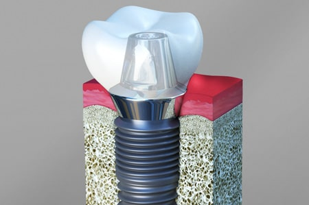 Dental Implants Cathedral City California