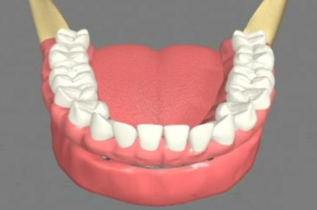 Implant supported dentures Cathedral City California