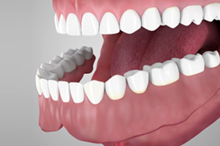 Overdentures supported by tooth root Cathedral City California