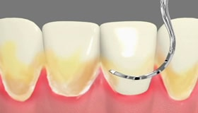 Periodontal Care Cathedral City CA