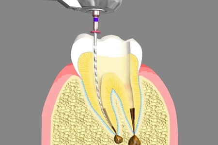 Root Canal Treatment Cathedral City California